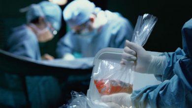 Photo of Kun je levende organen uit een dood lichaam halen?